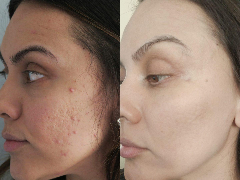 acne skincare routine